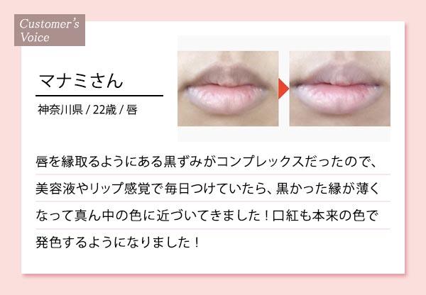 唇の黒ずみに使用した口コミ